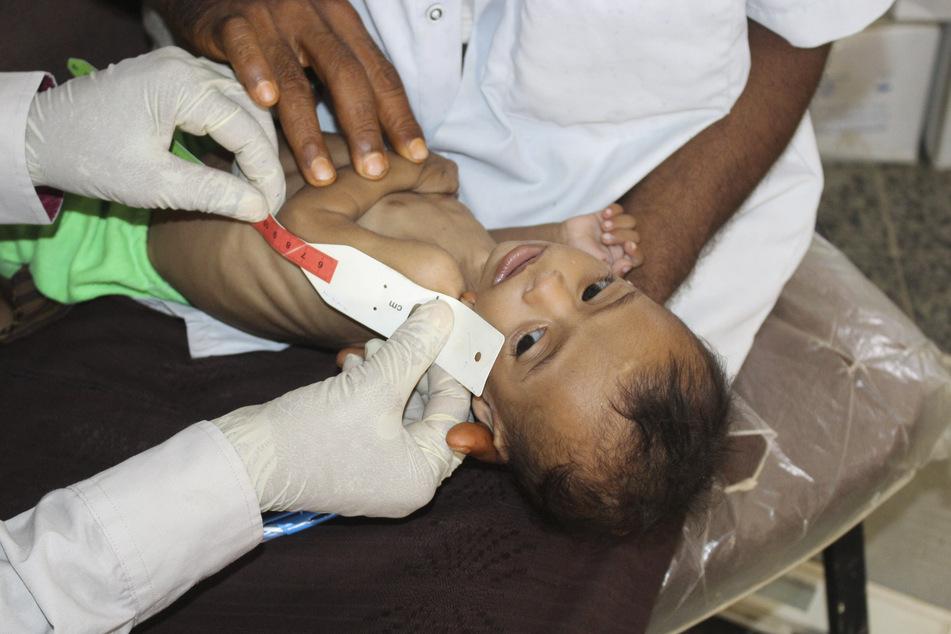 Ein sieben Monate altes und unterernährte Mädchen wird im Jemen von Ärzten untersucht. (Archivbild)