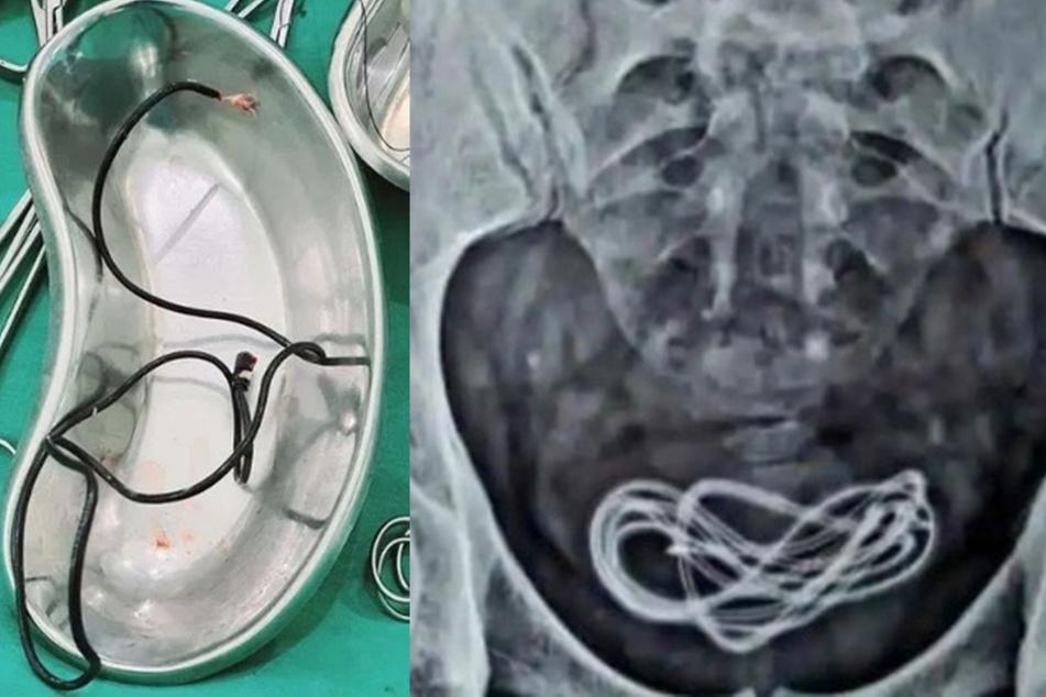 Mit einer Operation konnten die Ärzte das Kabel aus dem Mann herausholen.