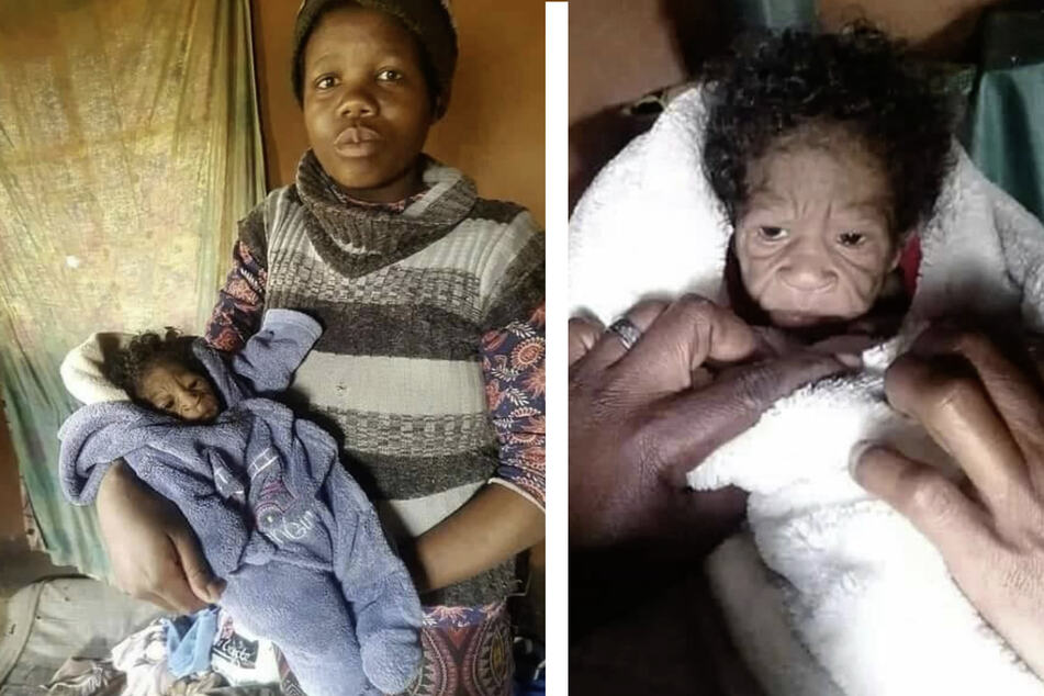 South African baby girl born with incredibly rare condition