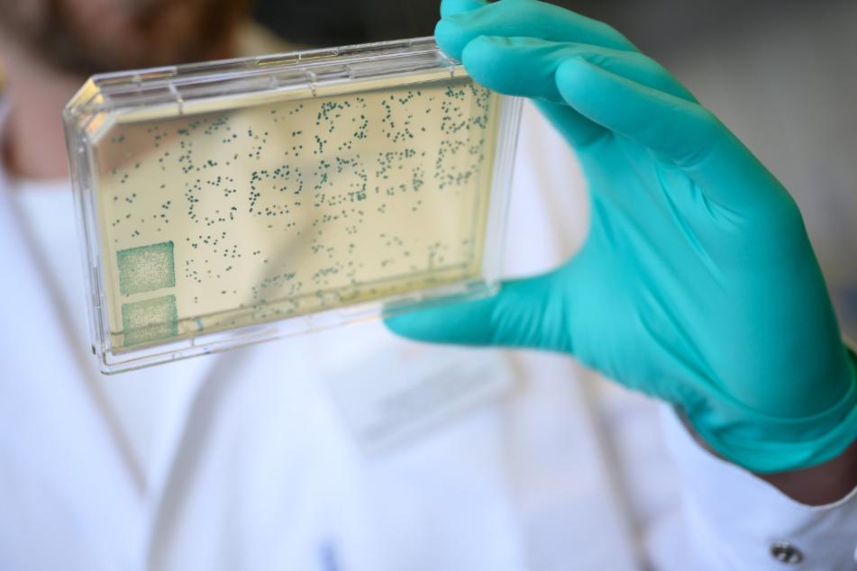 Ein Mann schaut sich in einem Labor des biopharmazeutischen Unternehmens Curevac einen Träger mit Bakterien an.