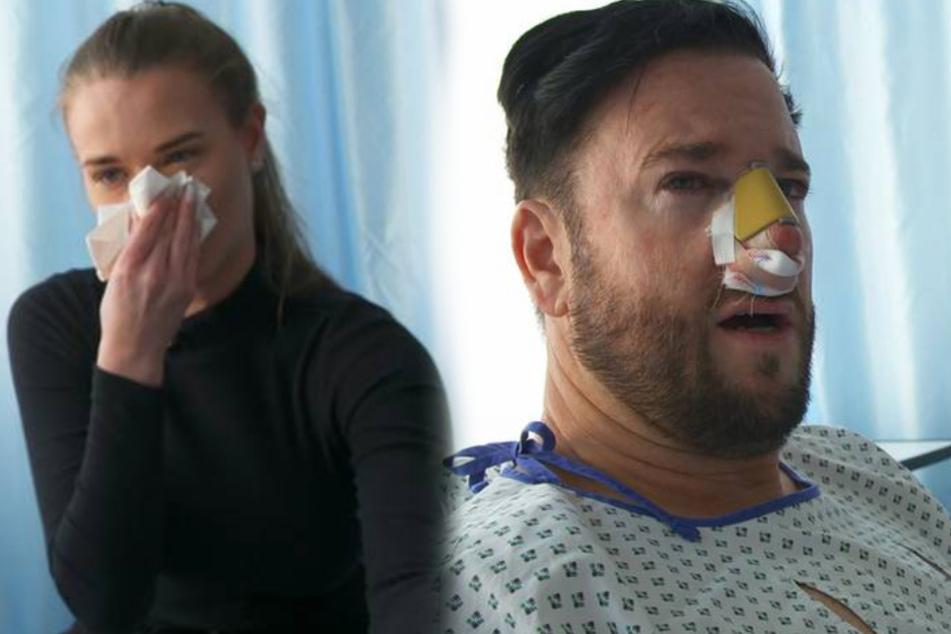 Nasen-OP beim Wendler: Arzt verwendet Leichenteile bei Operation!