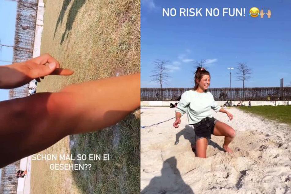 Jennifer Lange (27) verletzte sich am Mittwoch beim Radschlagen in Köln. Bei Instagram zeigte sie die Verletzung an ihrem Bein und nahm es mit Humor.