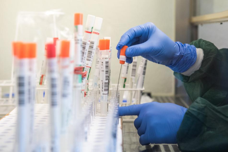 Labor-Panne! Zahlreiche falsch positive Corona-Tests