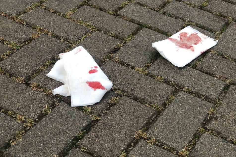 Blutspuren an der Gemeinschaftsunterkunft.