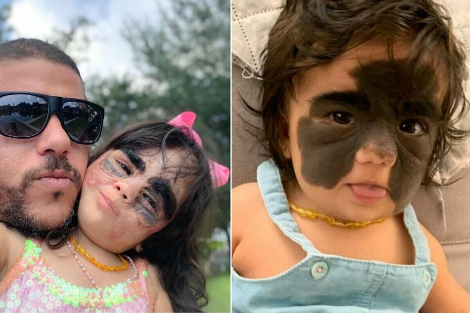 Baby with Batman mask birthmark becomes social media superstar as she gets miracle treatment!