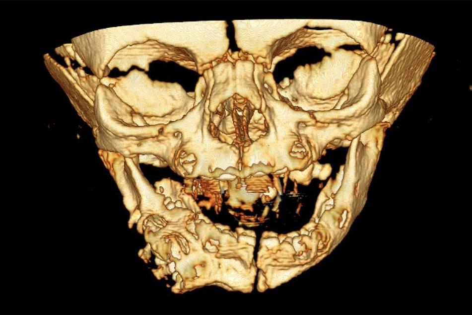 Dieses Ultraschallbild nahmen Gynäkologen im dritten Schwangerschaftstrimester auf.