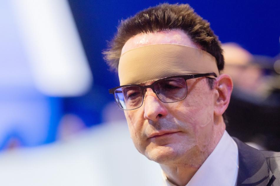 Säure-Anschlag auf Manager: Innogy setzt 100.000 Euro Belohnung aus