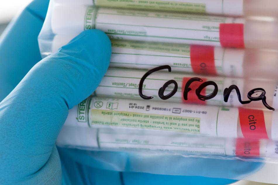 Proben für Corona-Tests werden im Labor für die weitere Untersuchung vorbereitet.