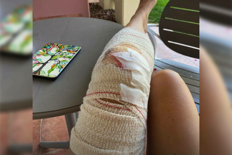 Auch das Knie der Schauspielerin wurde in Mitleidenschaft gezogen und ist nach der Behandlung dick bandagiert.