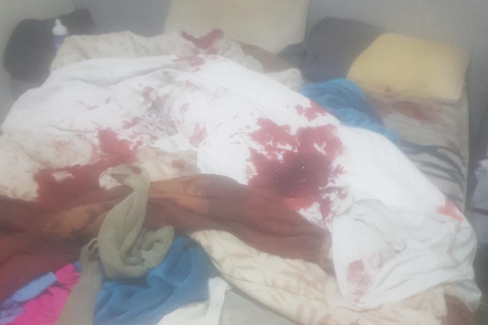 Überall Blut: Brooke Carrello war schockiert.