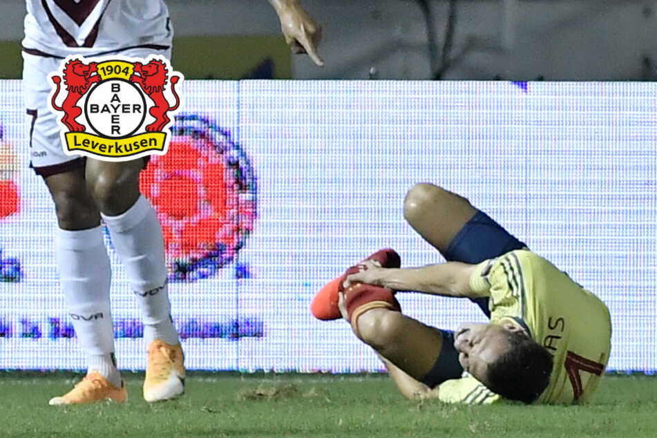 Schwere Verletzung bei Fußballer Santiago Arias: Bayer Leverkusen geschockt!
