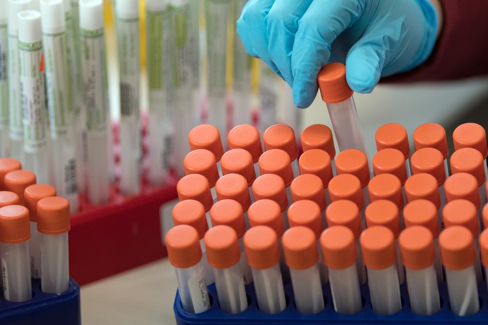 Proben für Corona-Tests werden für die weitere Untersuchung vorbereitet.