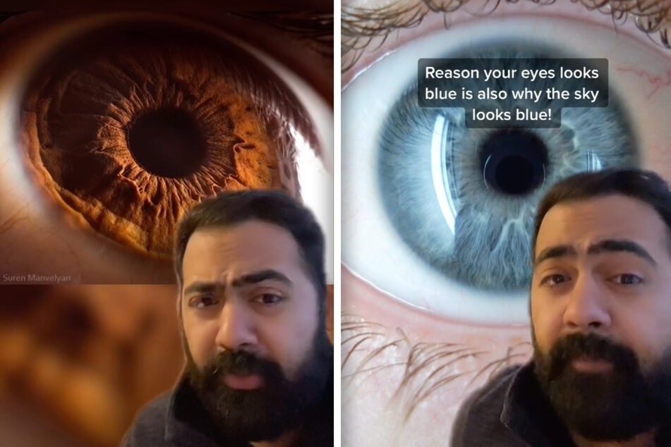 Blaue Augen sind eigentlich gar nicht blau! TikTok-Arzt liefert spannende Fakten