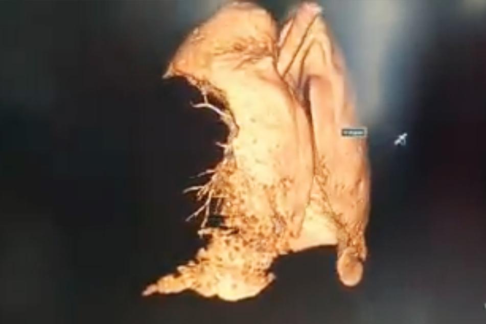 Die Lunge eines 27-jährigen Mannes wurde von Corona förmlich zerfressen.