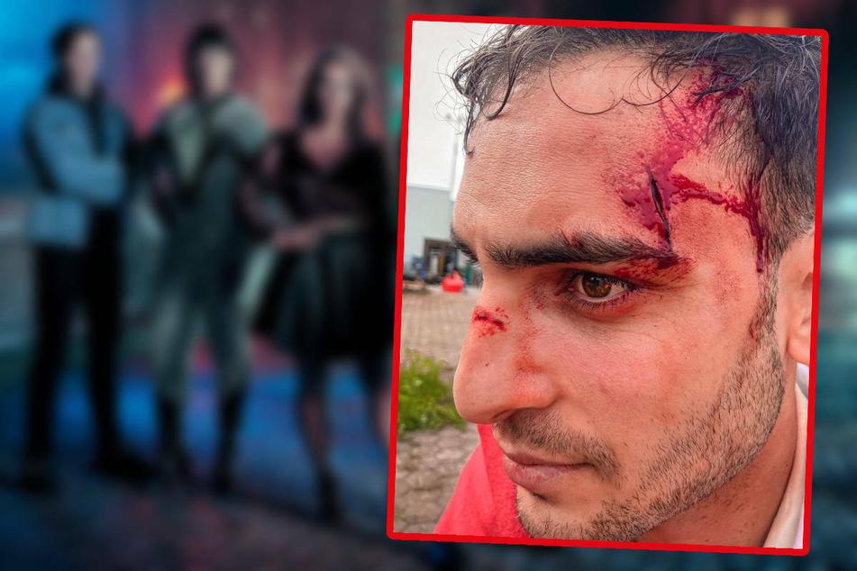 GZSZ-Star Timur Ülker schwer verprügelt? Das steckt dahinter