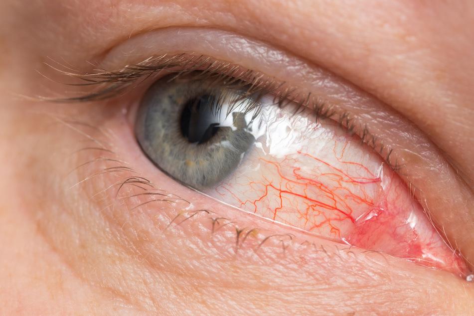 Von einer Bindehautentzündung spricht man, wenn sich die die kleinen Blutgefäße in der Bindehaut entzünden und dadurch besser sichtbar sind.