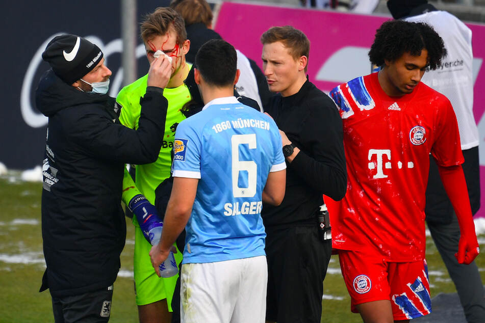 Löwen-Torwart Marco Hiller (23, 2.v.l.) musste blutüberströmt auf dem Platz behandelt werden, Bayern-Spieler Joshua Zirkzee (19,r.) sah dafür Rot.