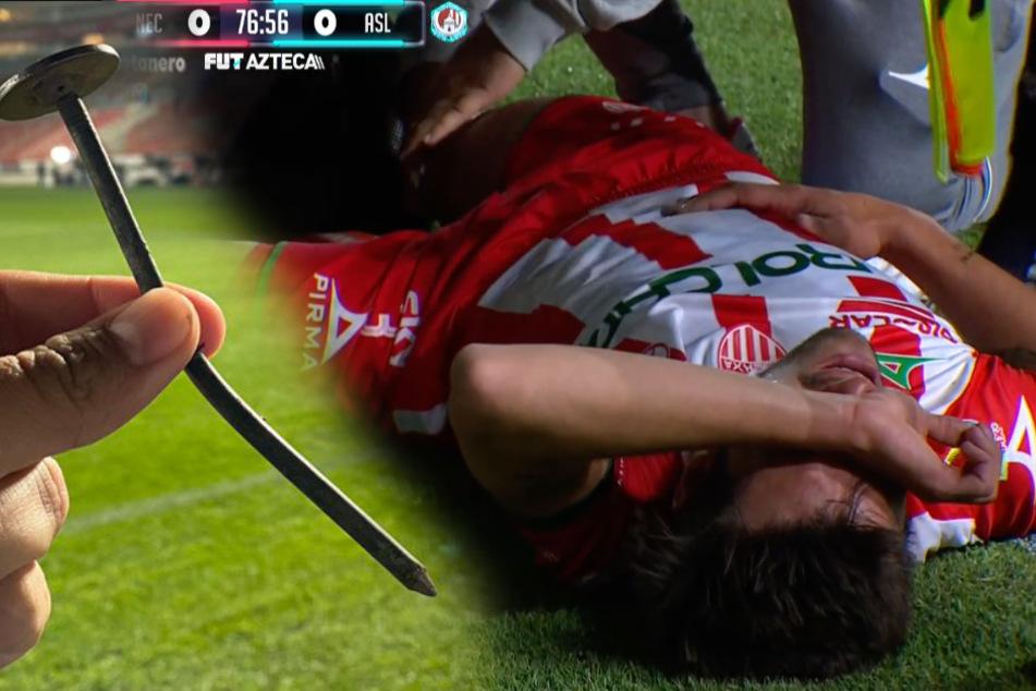 Horror-Verletzung: Nagel reißt Fußballer Fleischwunde ins Knie