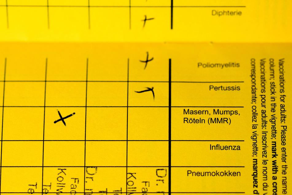 Die Zahl der Masernfälle in NRW ist im Corona-Jahr sehr niedrig. (Symbolbild)