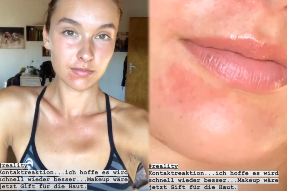 Die Montage zeigt zwei Screenshots aus den Instagram-Stories von GNTM-Siegerin Jacky.