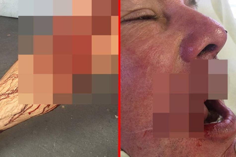 Schockierende Fotos! Zahnarzt überlebt Hai-Attacke