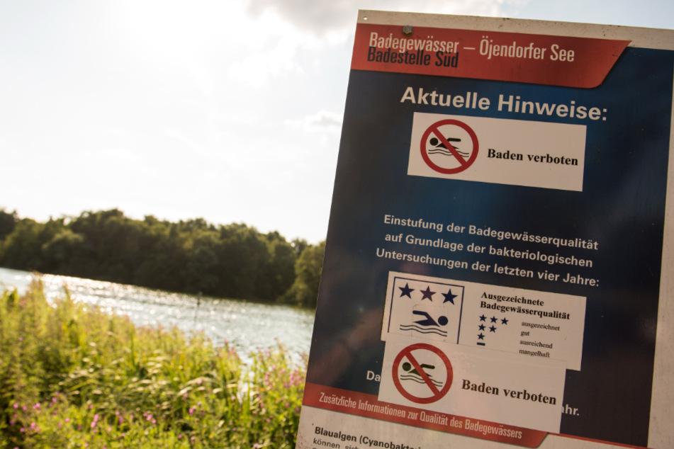 Der Öjendorfer See musste in den vergangenen Jahren mehrmals wegen Blaualgen gesperrt werden. Schilder wiesen Badegäste darauf hin. (Archivbild)