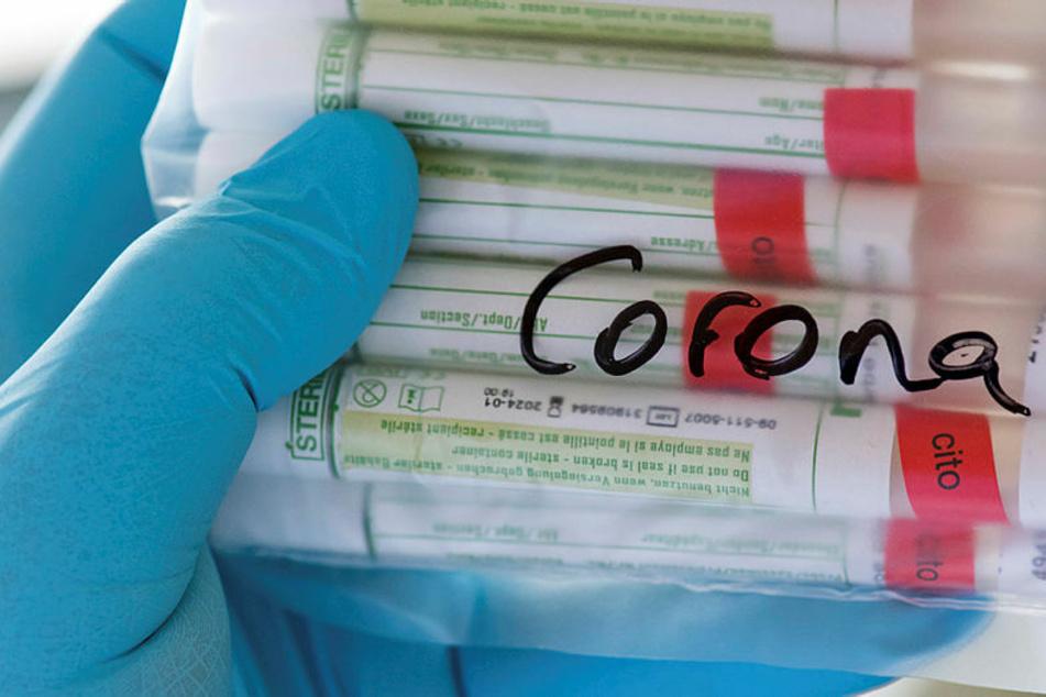 Der für die Getesteten aktuell kostenlose Corona-Test schlägt mit 65,50 Euro zu Buche. Der Freistaat und die Kassenärztliche Vereinigung Sachsen teilen sich in die Kosten.