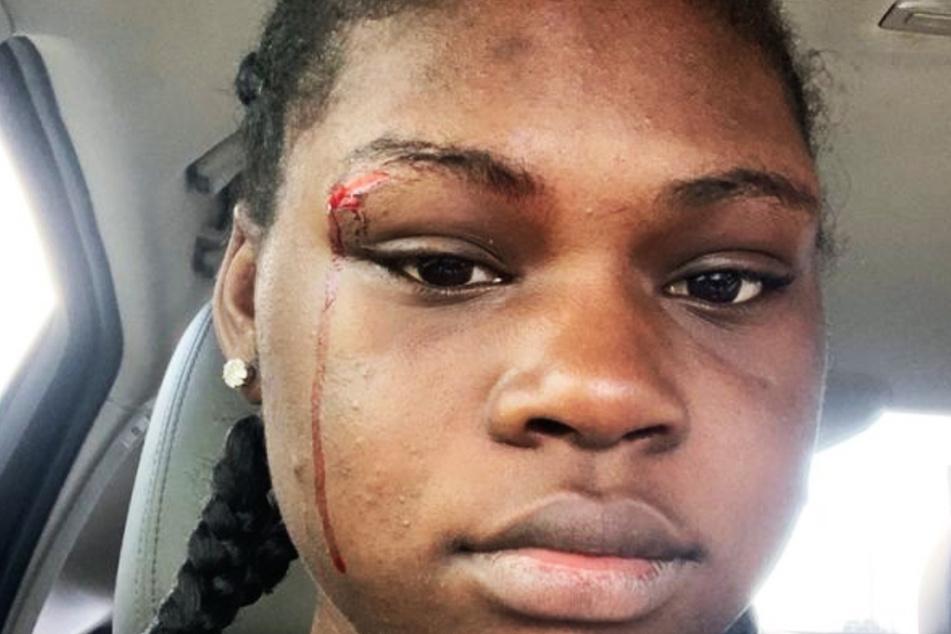 Die verletzte Kelsey Wallace einige Zeit nach dem Zwischenfall.