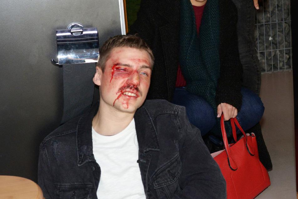 Moritz wird von Nils zusammengeschlagen.
