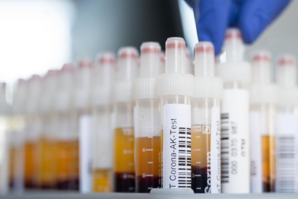 Aktuelle Corona-Tests werden damit für Reisende aus Infektions-Hotspots unabdingbar.