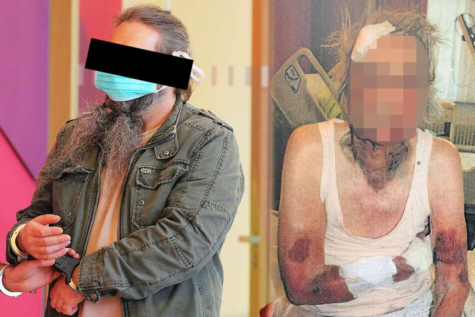 Dresden: Eigene Oma (98) krankenhausreif geschlagen: Richter schickt Prügel-Enkel hinter Gittern