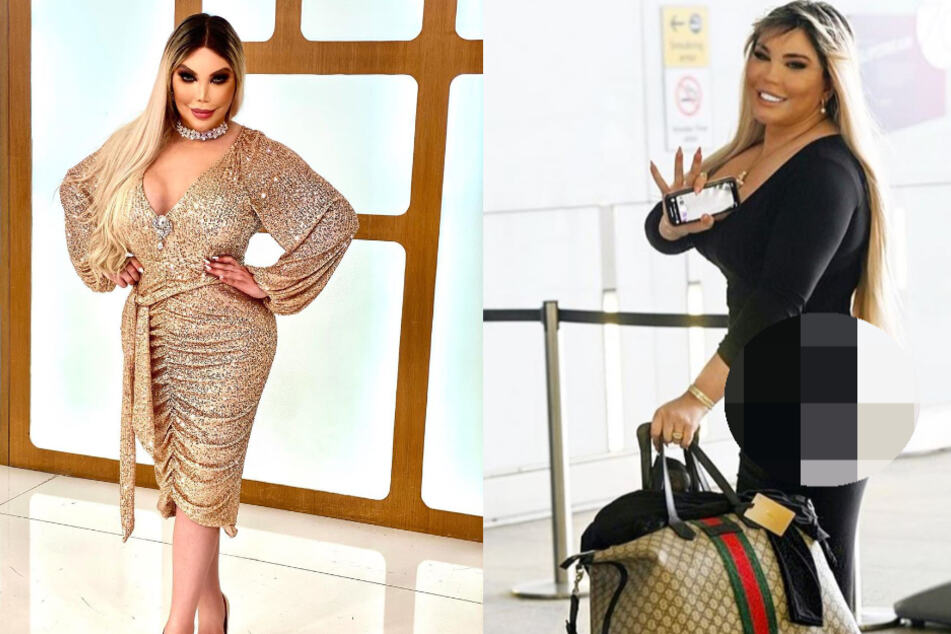 Transgender-Barbie Rodrigo Alves gönnt sich XXL-Po-Injektion