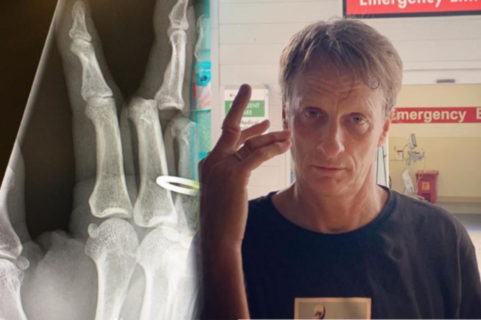 Tony Hawk präsentiert seinen gebrochenen Finger.