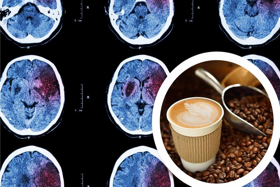 Swiss study shows caffeine can shrink your brain