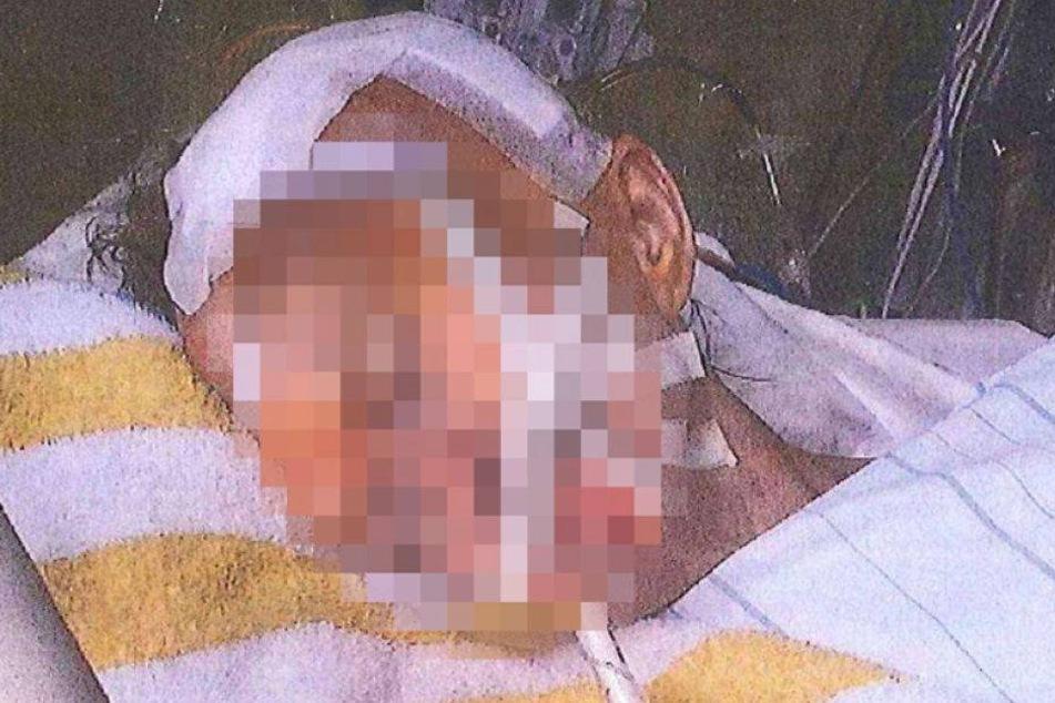 Identität von schwer verletzter Frau geklärt