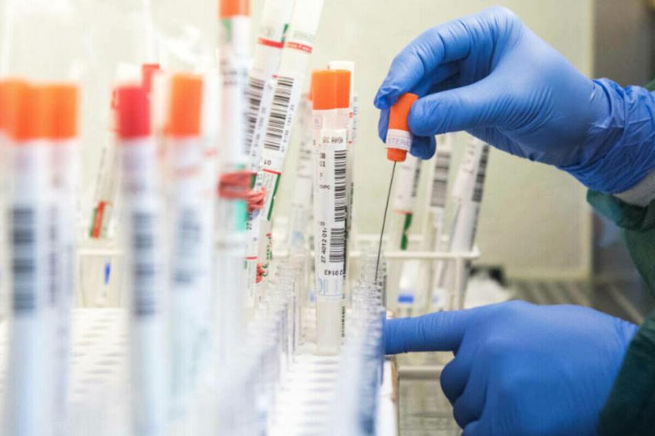 Tests auf das SARS-CoV-2-Virus werden in einem Labor ausgewertet.