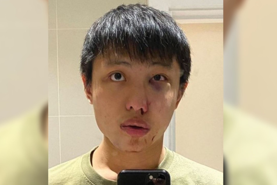 Das 23-jährige Opfer wurde übel zugerichtet, wie ein Bild bei Twitter zeigt.