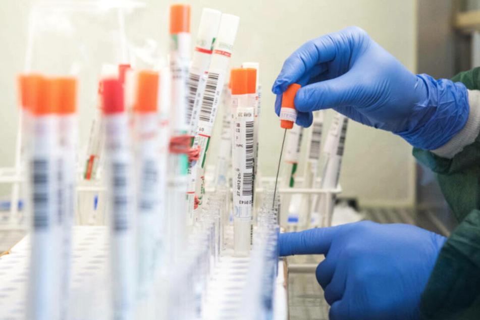 Tests auf das SARS-CoV-2-Virus werden in einem Labor ausgewertet (Archivbild).