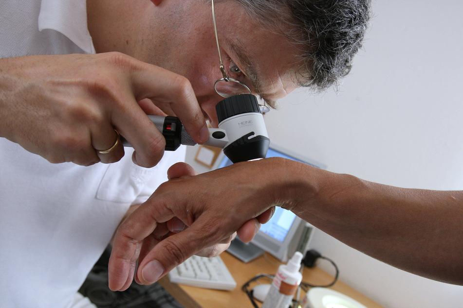AOK-Studie: Deutlich mehr Hautkrebsfälle in NRW