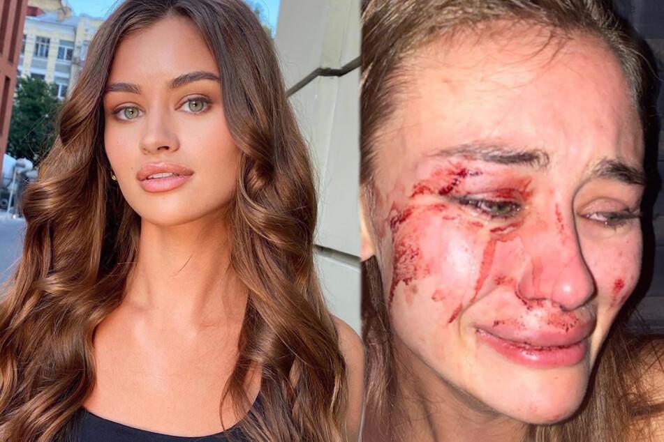 Das ukrainische Model Daria Kyryliuk (23) behauptet, im Türkei-Urlaub ins Gesicht geschlagen worden zu sein. Sie fordert, dass solche Gewalt gegen Frauen aufhören solle.