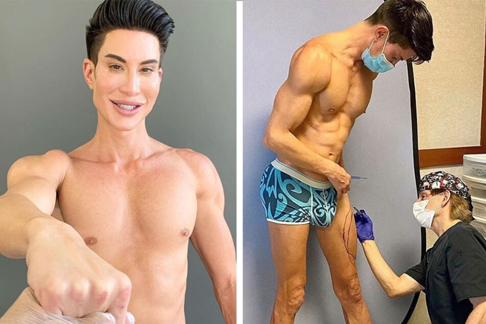 """Human Ken Doll"" celebrates his 1,000th surgery with eight leg implants"