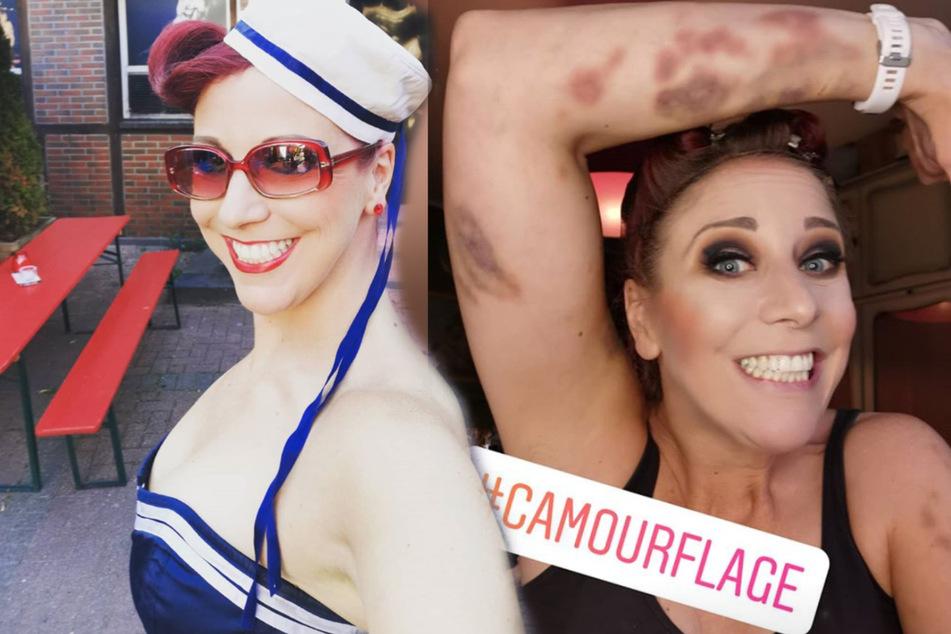 Oh Schreck! Burlesque-Ikone Eve Champagne mit blauen Flecken übersät!