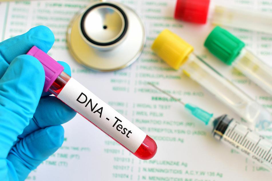 Mithilfe eines DNA-Tests wollte Lydia etwas über ihre Vorfahren herausfinden. (Symbolbild)