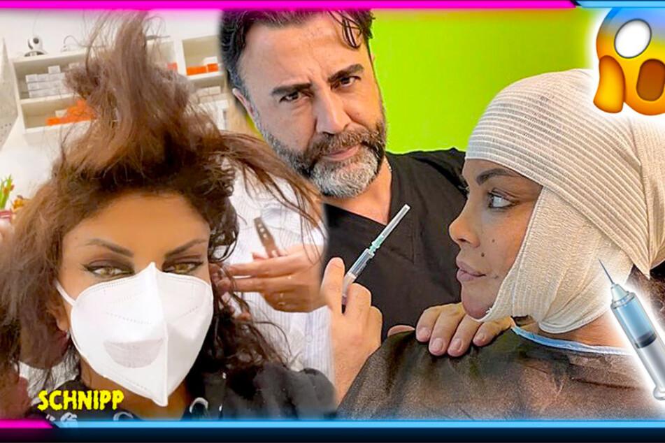 Extrem-Makeover! Musste sich Kader Loth wegen TV-Show unters Messer legen?