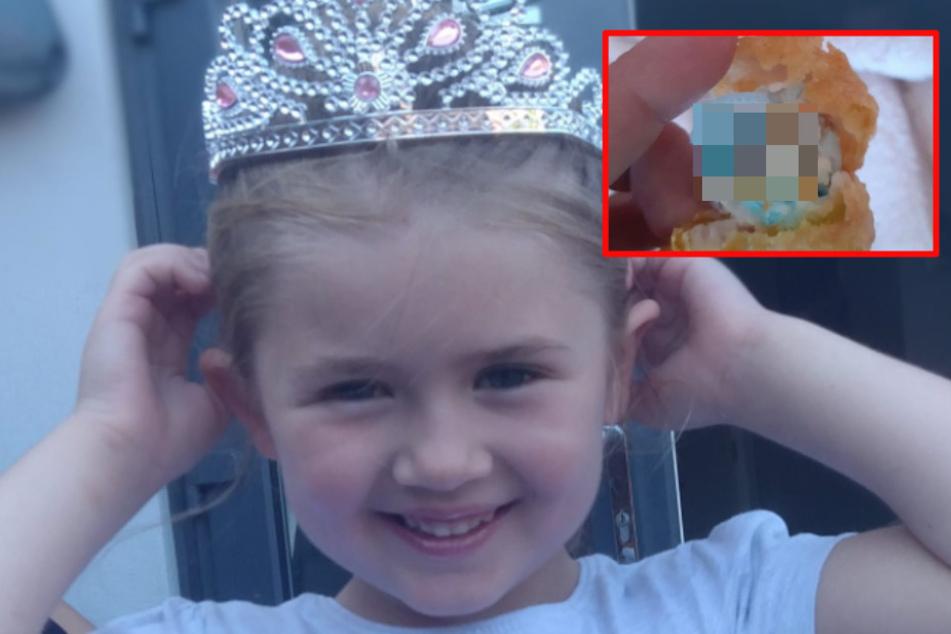 Maddie (6) fast an Chicken Nuggets erstickt: Mutter fassungslos, was sie darin findet!
