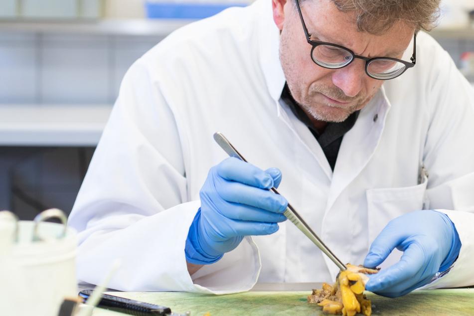 Pathologe warnt: Corona kann Euren ganzen Körper treffen