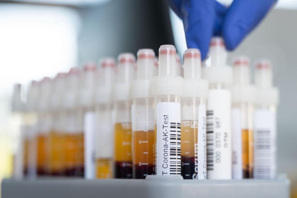 Die Gesundheitsbehörden im Bereich Starnberg haben nun weitere Tests auf den Weg gebracht. (Symbolbild)