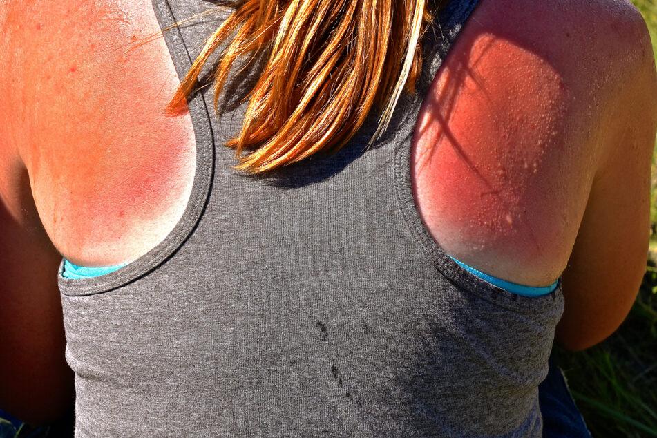 Wegen der hohen UV-Strahlung droht ungeschützter Haut schnell Sonnenbrand. (Symbolbild)