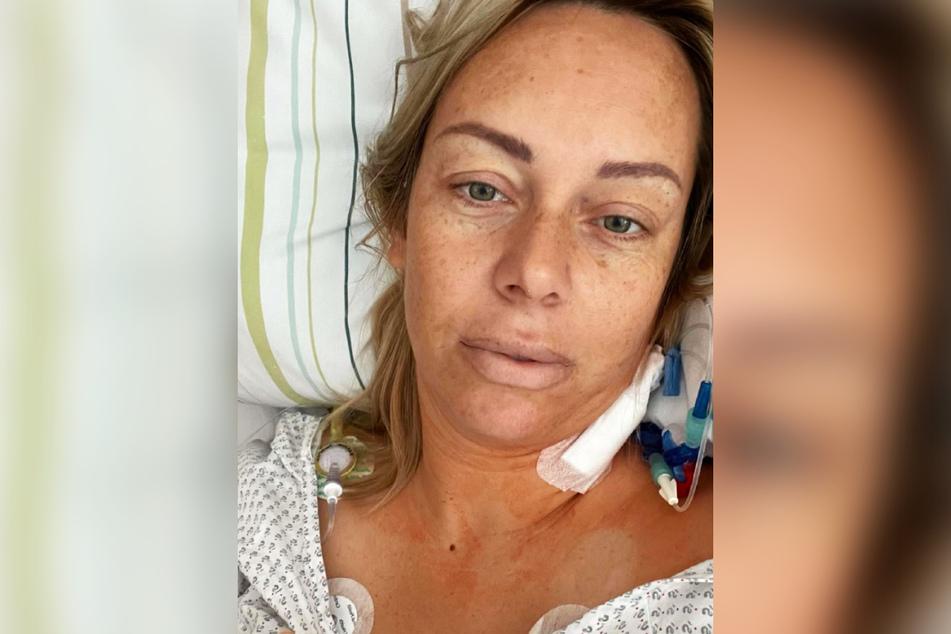 Die krebskranke Influencerin Julia Holz (35) unterzieht sich aktuell einer Chemotherapie.