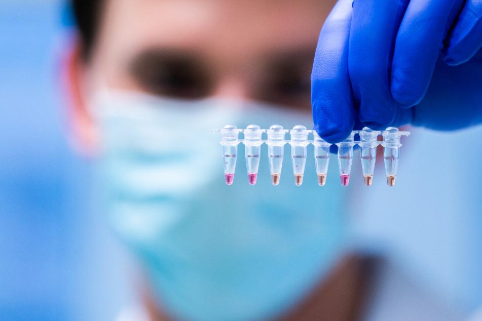 Proben werden auf das Coronavirus untersucht.